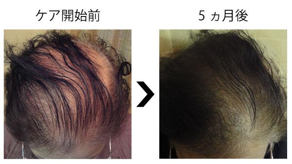 女性の薄毛が改善2