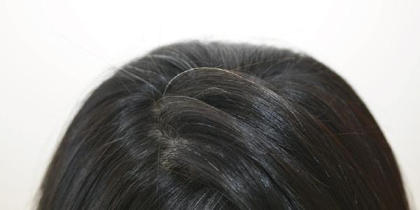 白髪の原因