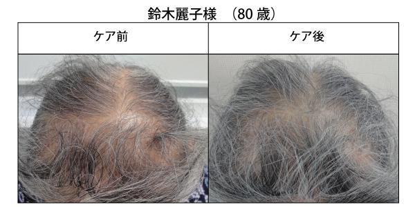 醸成の薄毛改善1