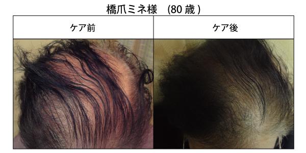 醸成の薄毛改善2