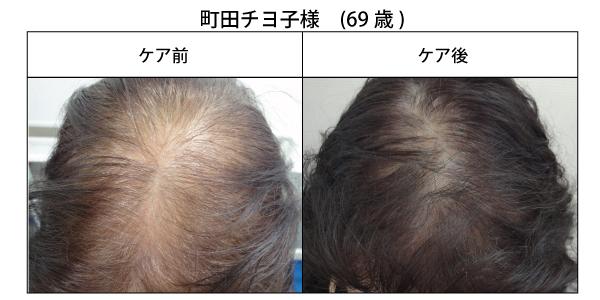 醸成の薄毛改善3