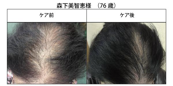 醸成の薄毛改善4