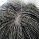50代女性の白髪と抜け毛