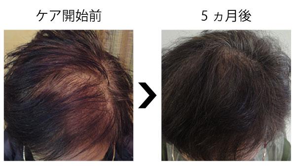 女性の薄毛が改善した事例1