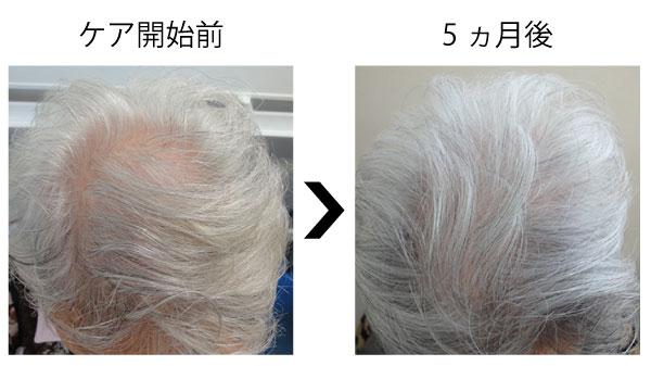 女性の薄毛が改善した事例3