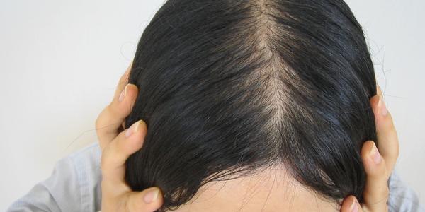 2ヵ月で女性の薄毛が改善!!自宅で簡単ケア | 女性の薄毛 ...