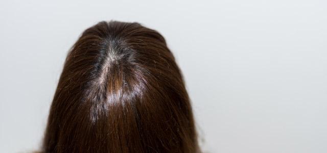 頭皮が透ける原因と対策